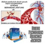 Jual Smart Detox Asli dari Synergy di Sunter Jakarta Utara | Hubungi 087878202527|